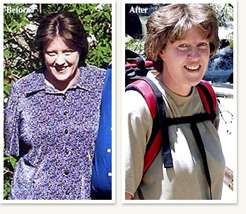 Margaret before and after losing 67 pounds at Clinical Nutrition Center in Denver Colorado