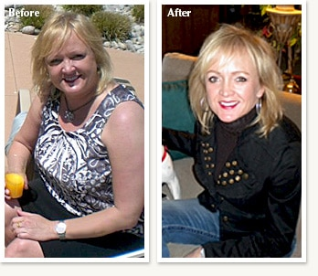 Pam before and after losing 53 pounds with weight loss Doctor Ethan Lazarus