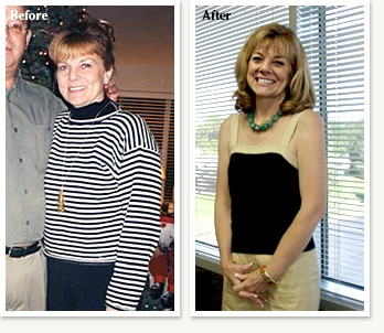 Sally before and after losing 23 pounds with Dr Ethan Lazarus in Greenwood Village Colorado