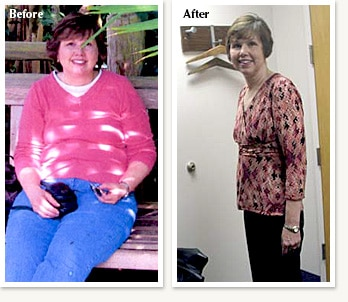 Teresa before and after losing 68 pounds at Clinical Nutrition Center in Denver Colorado