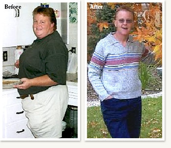 Claudia pictures before and after 106 pound medical weight loss with Dr Ethan Lazarus in Denver Colorado