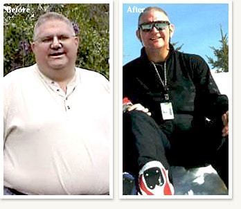 Craig before and after 143 pound medical weight loss journey with Dr Ethan Lazarus in Denver Colorado
