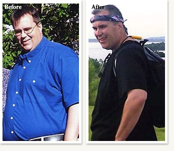 Ed before and after losing 108 pounds with Dr Ethan Lazarus in Greenwood Village Colorado