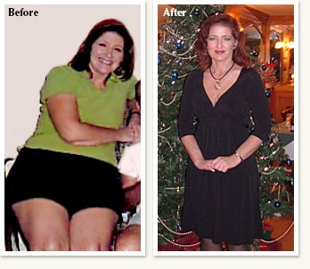 Jana before and after medical weight loss of 58 pounds in Denver Colorado