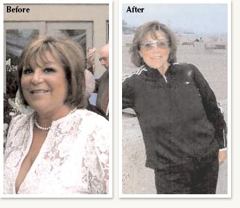 Linda before and after medical weight loss of 60 pounds with Dr Ethan Lazarus in Greenwood Village Colorado