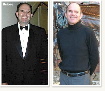 Peter before and after 48 pound medical weight loss journey with Dr Ethan Lazarus in Denver Colorado