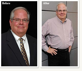 Steve before and after 50 pound medical weight loss journey with Clinical Nutrition Center in Denver Colorado