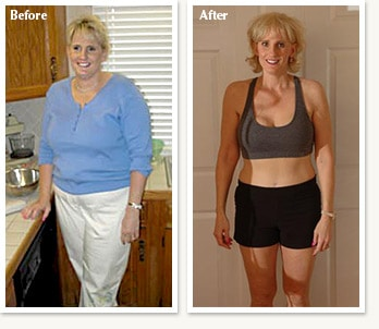 Teri: before and after 82 pound medical weight loss with Dr Ethan Lazarus in Denver Colorado