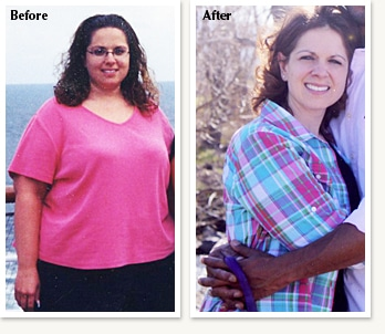 Enid before and after medical weight loss with Clinical Nutrition Center in Denver Colorado