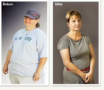 Tracey before and after medical weight loss with Dr Ethan Lazarus
